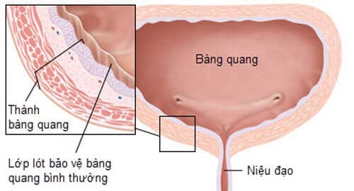 Cách phát hiện viêm bàng quang