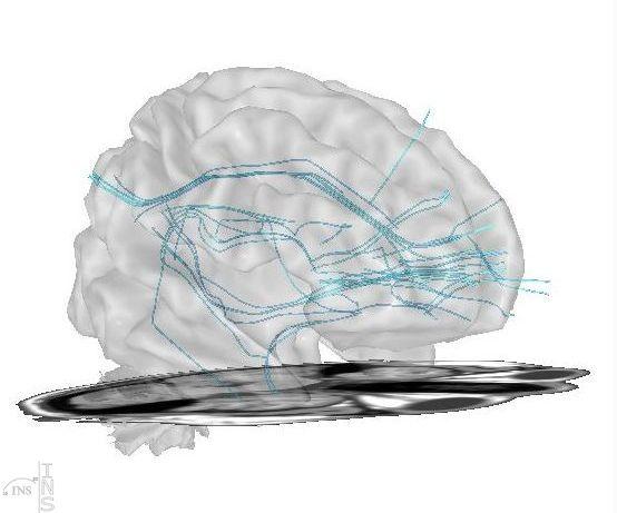 Faisceaux de connectivité cérébrale, DTI fiber.