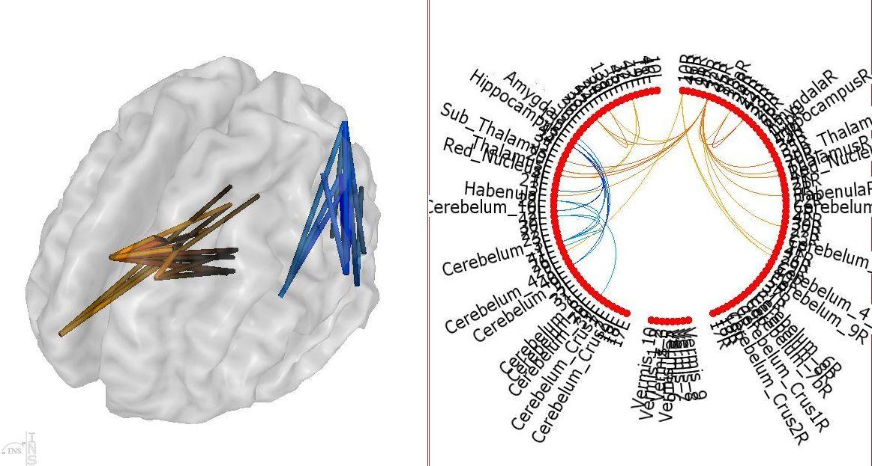 connectivité cérébrale fonctionnelle, en 3D et schéma de connectome cérébral.