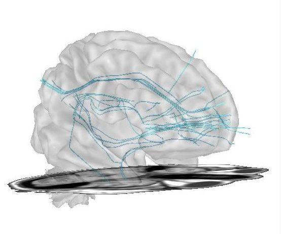 swLoreta Neurofeedback, neurosciences et management.