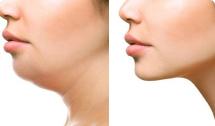 botox for facial fat
