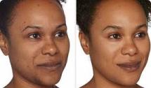 Botox for Redness / Pigmentation