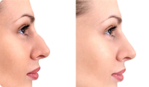 botox for face shape