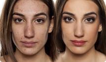 botox for acne/pores