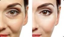 botox for anti-ageing