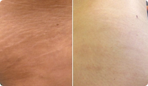 botox for Cellulite / Stretch Marks