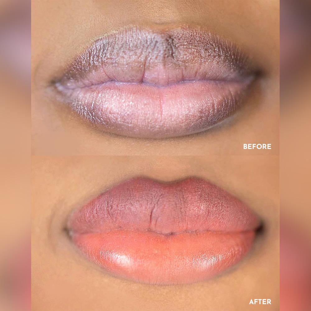 lip blush, lip neutralizing NYC