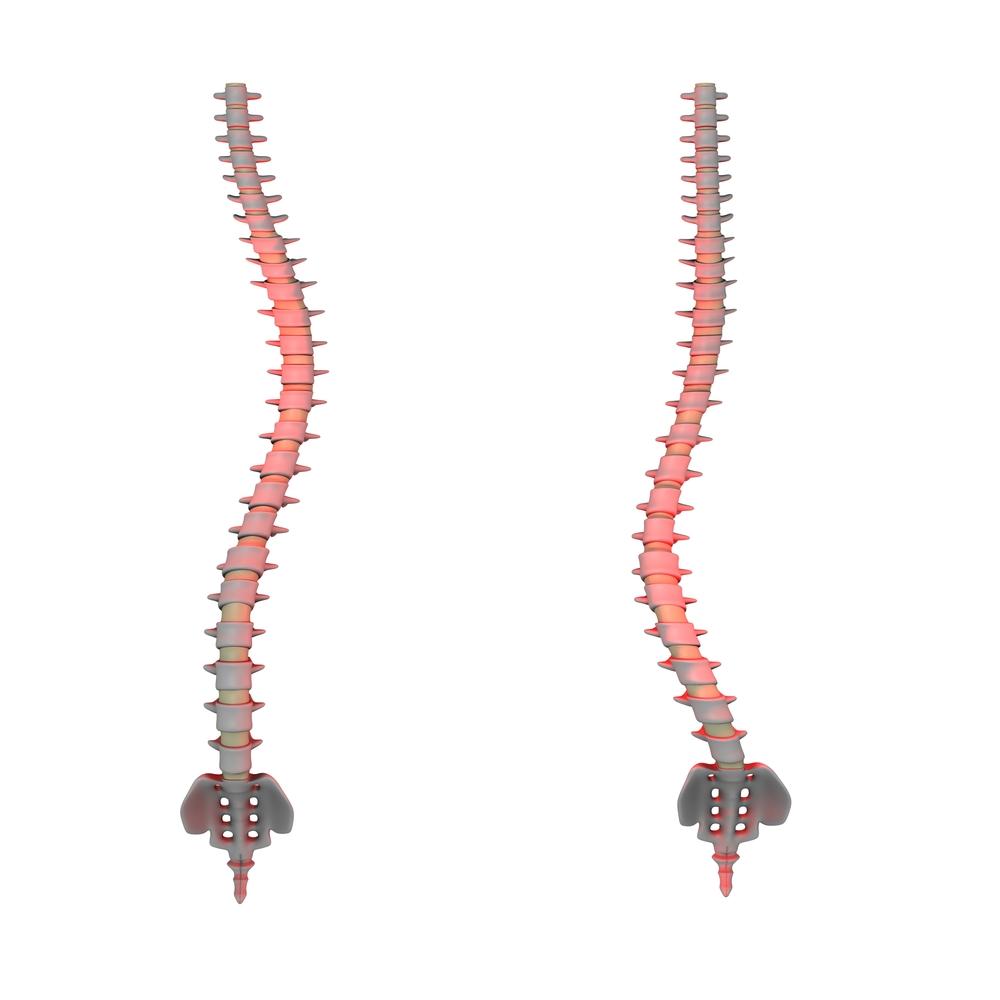 Diagram of lumbar scoliosis