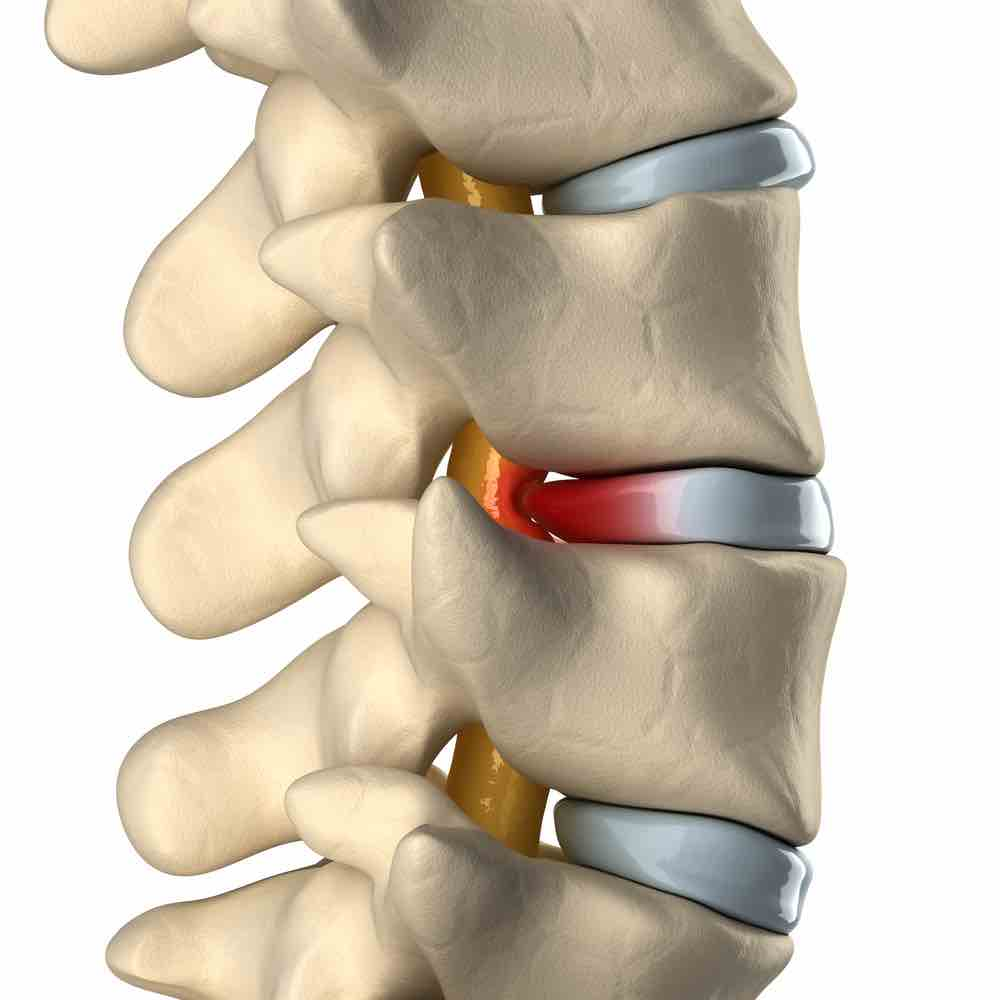 Diagram of a herniated disc