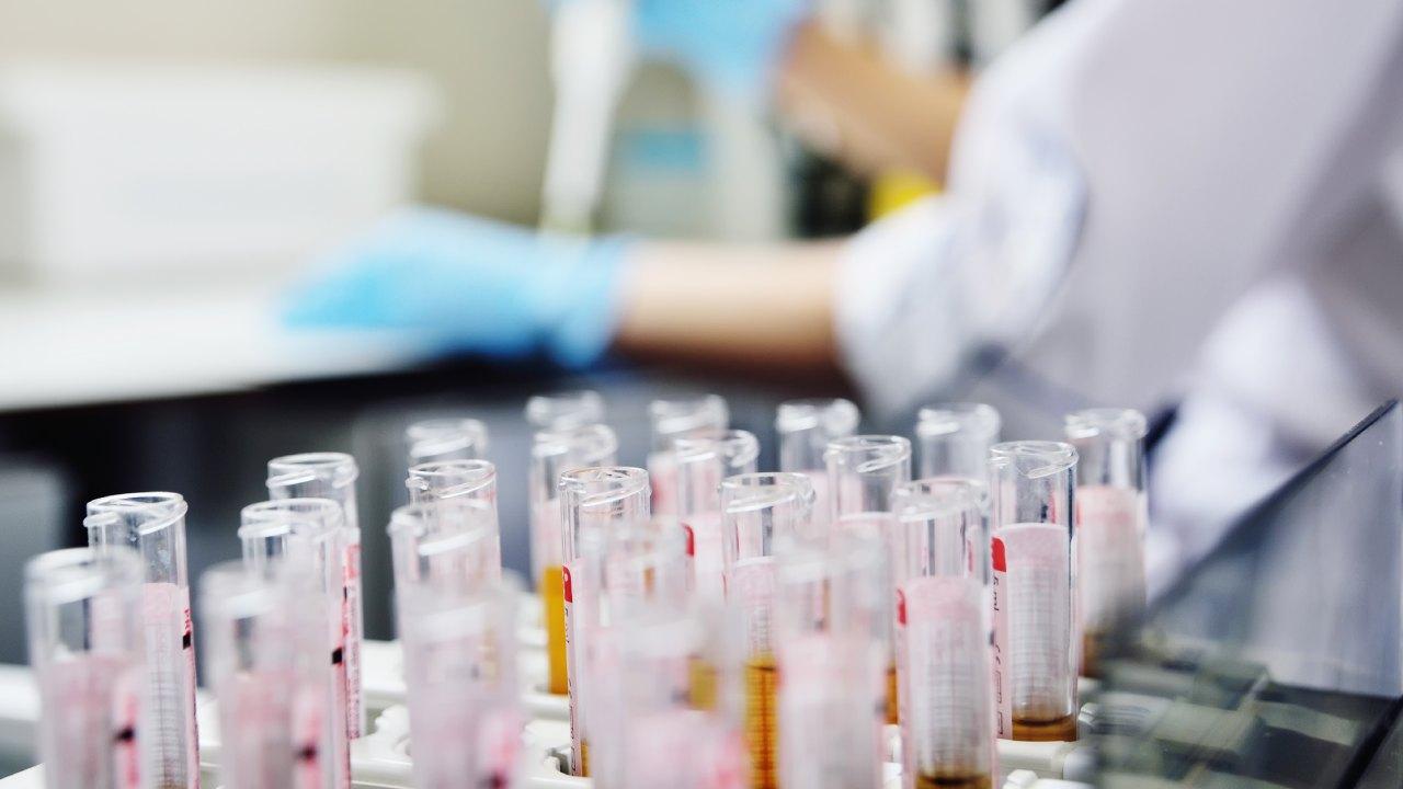 Row of drug sample test tubes