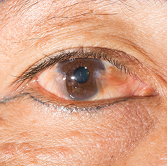 Pterygium present in the eye of a patient