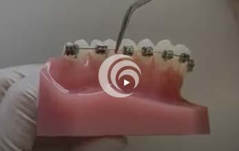 Model of teeth with metal braces