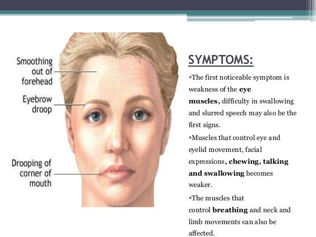 myasthenia gravis új technológiák a látás javítása érdekében
