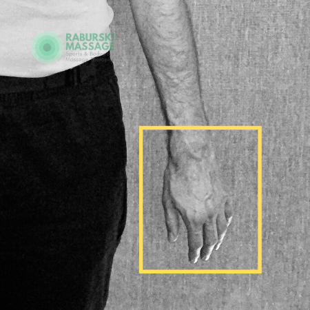 Daniel Raburski's hand with a focus on hand cleaning and sanitisation