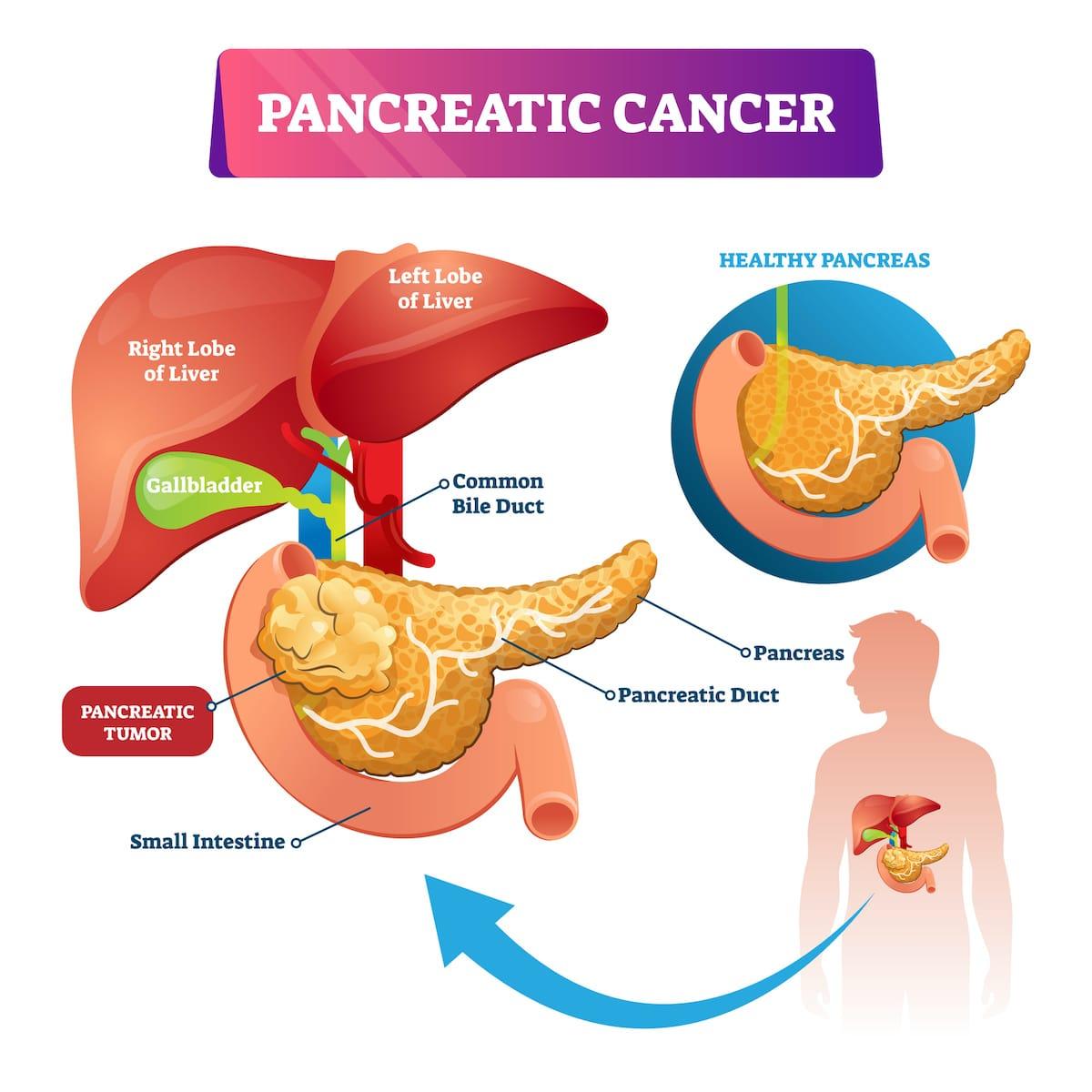 Pancreatic cancer weight gain. Înțelesul