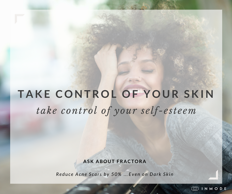 Micro needling and radio frequency: the ultimate skin tightening and resurfacing one-two punch. Perfect for acne scar reduction, wrinkle tightening, stretch marks reduction, and collagen stimulation.
