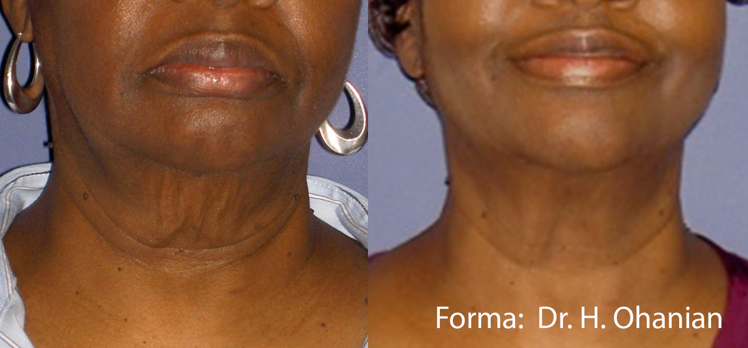 Before and after Forma