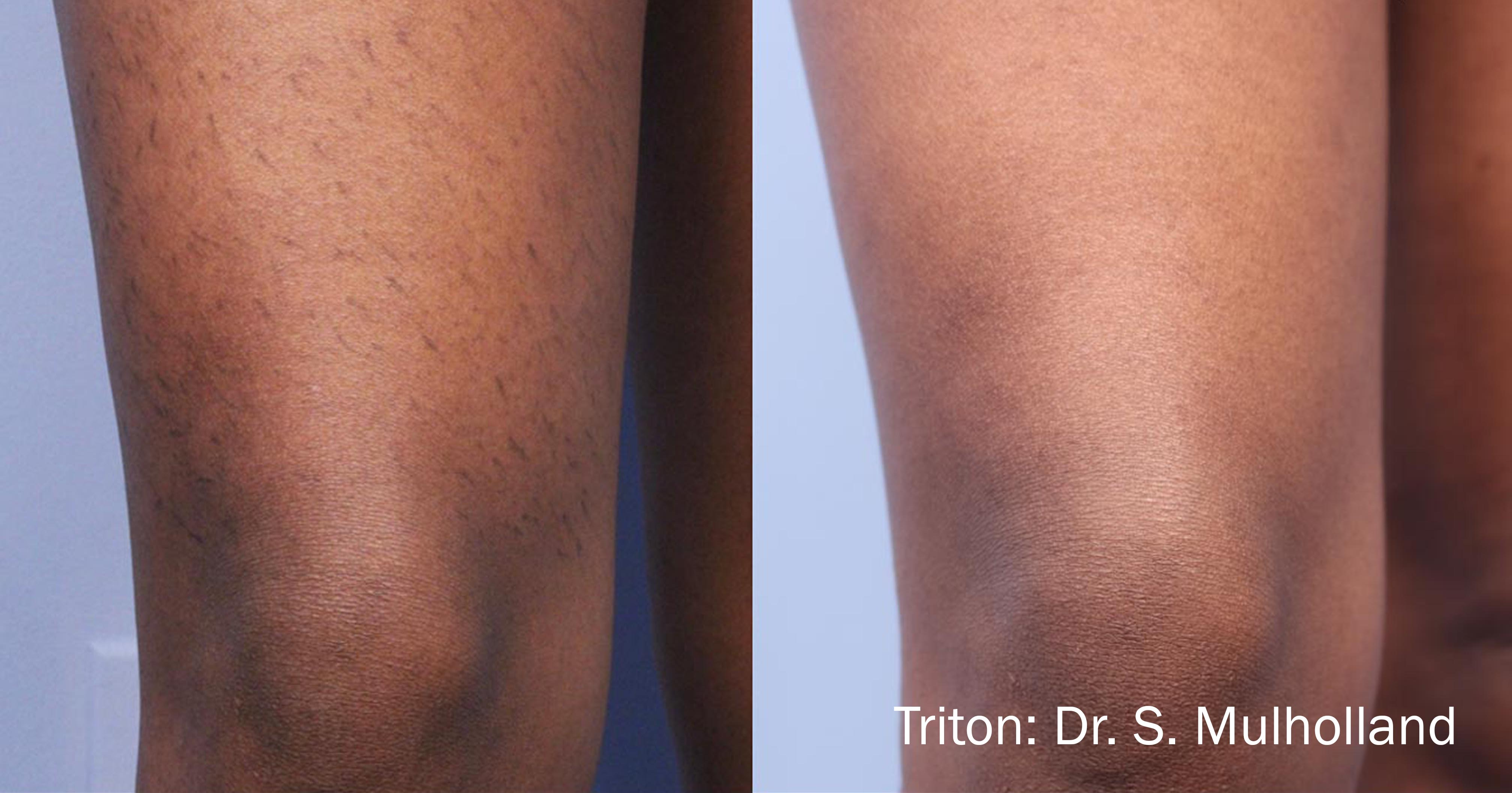 Before and after Triton
