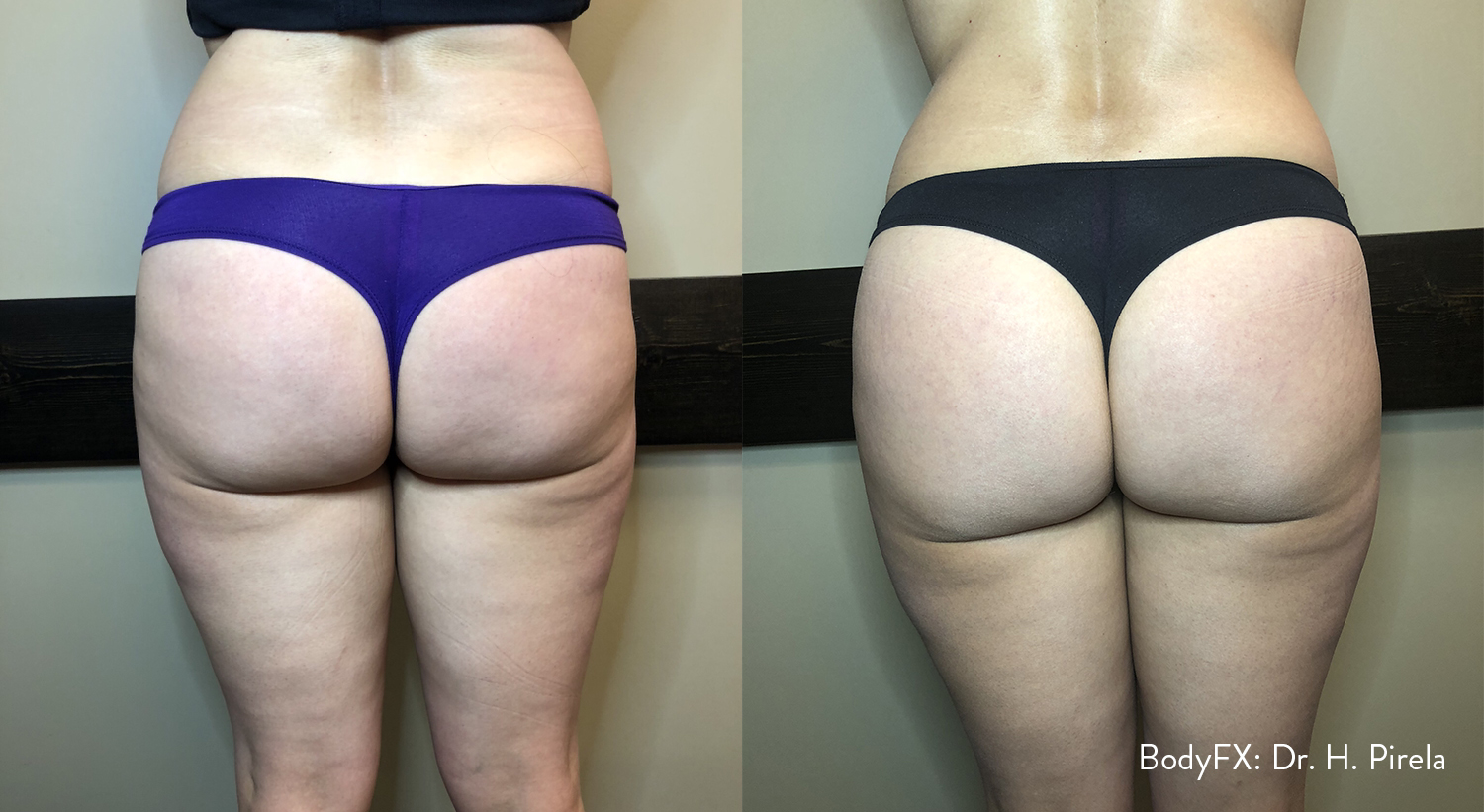Before and after BodyFX