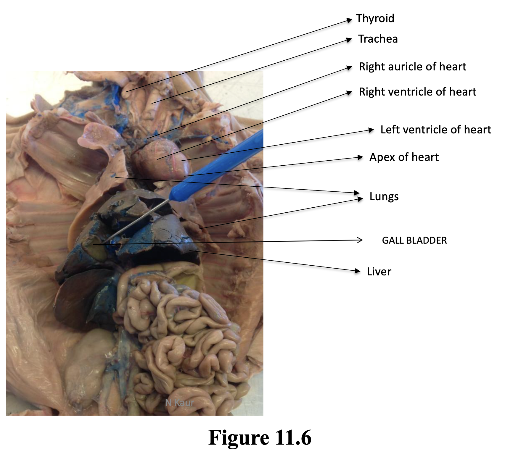 Figure 11.6 shows the major organs of the thoracic cavity including the some of the major parts of the heart; the right auricle which looks like a dark red dog ear. The right auricle covers the right atria; the right ventricle and the left ventricle which are separated by red and blue blood vessels (coronary arteries and veins); the apex of the heart which is found in the lower left side of the heart. The heart side between two lungs which occupy much of the thoracic cavity. Also highlighted are the thyroid and trachea discussed in figure 11.5 and the liver and gallbladder which are in the abdominal cavity and were discussed in lab 10.