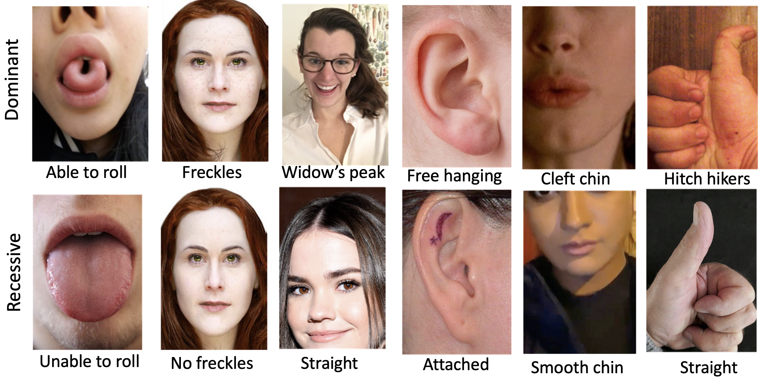 The pictures illustrate some common  dominant and recessive Mendelian traits in humans. Some dominant traits are: tongue roll, freckles, widow's peak, free earlobe, cleft chin and hitchhikers thumb. The recessive traits for the above dominant traits are: no roll, no freckles, straight hairline, attached earlobe, smooth chin and straight thumb respectively.