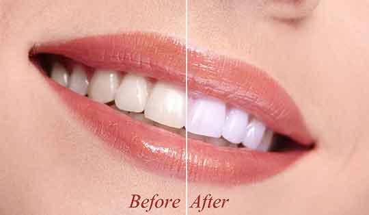 Teeth whitening at your Winter Park, FL Dentist in Orlando