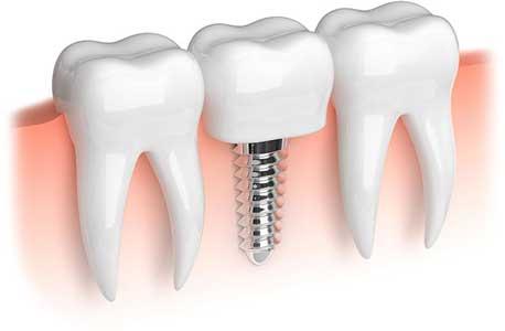 Dental implants at your Winter Park, FL Dentist in Orlando