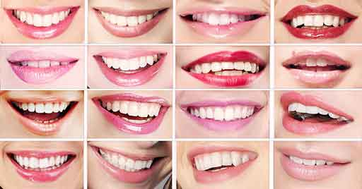 Dental veneers at your Winter Park, FL Dentist in Orlando