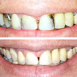 White Fillings/Bondings at your Winter Park, FL Dentist in Orlando