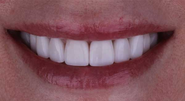 Winter Park Dentist Before & After After Photo 01
