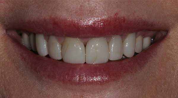 Winter Park Dentist Before & After Before Photo 01