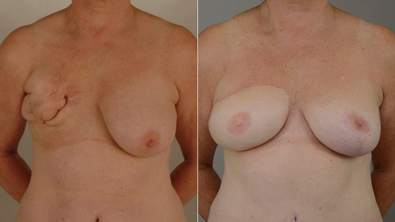 DIep reconstruction before & after