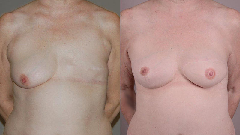 breast reconstruction with Diep flap before & after