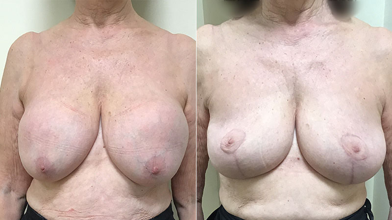 before and after breast implant removal uplift