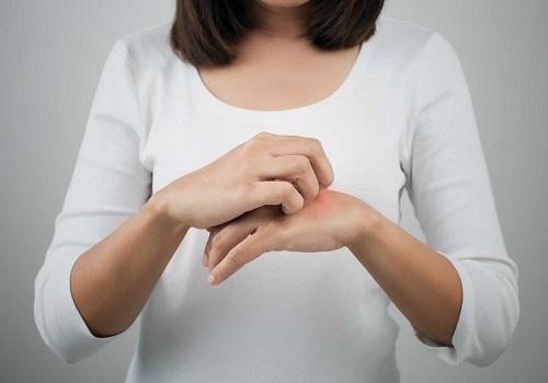 Dermovate cream là thuốc chuyên đặc trị về da
