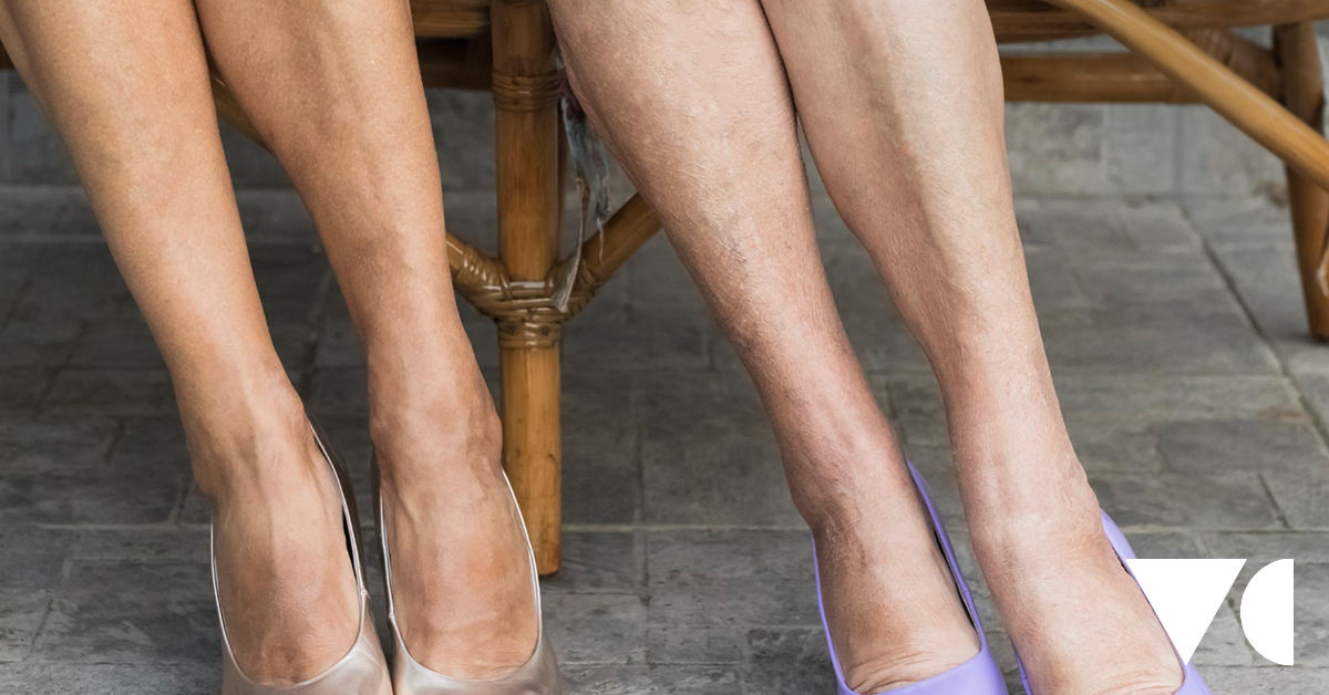 A guide to varicose vein treatment costs