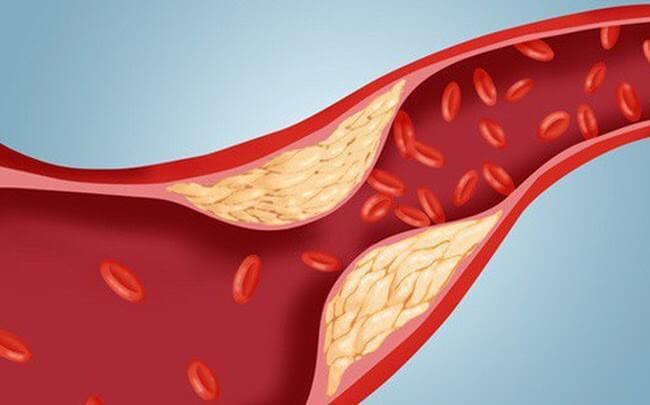 Omega 3 giúp giảm lượng cholesterol trong máu, giảm nguy cơ mắc các bệnh về tim