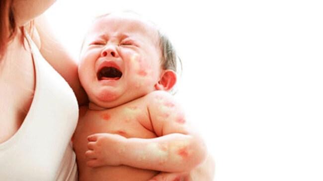 Chăm sóc các bệnh ngoài da ở trẻ