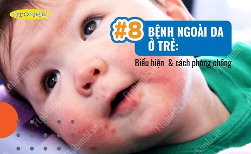 bệnh ngoài da ở trẻ