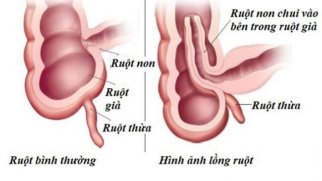Hình ảnh lồng ruột ở trẻ sơ sinh