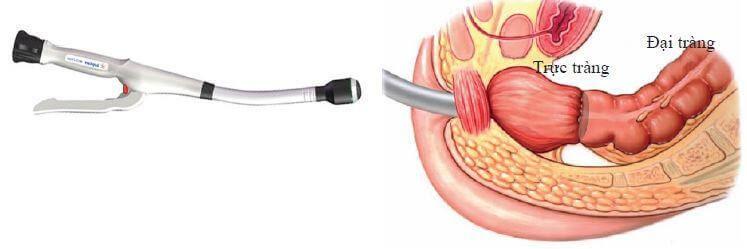 Phẫu thuật cắt bỏ một phần đại tràng sẽ được chỉ định khi trẻ không đáp ứng với điều trị bằng thuốc