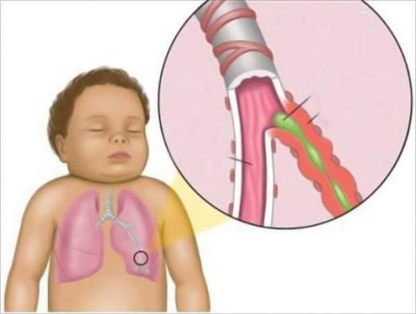 Hình ảnh viêm phế quản ở trẻ em