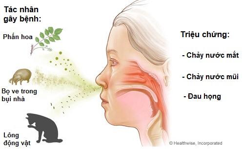 Một số tác nhân dị ứng có thể gây viêm họng ở trẻ