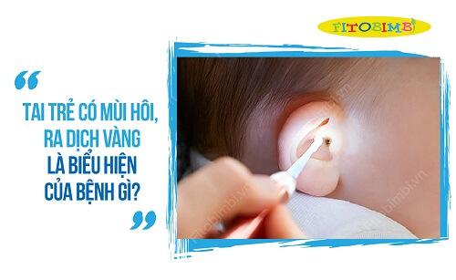 tai trẻ có mùi hôi ra dịch vàng