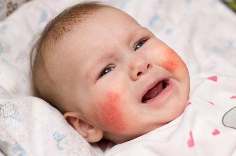 Mạt bụi và nấm mốc trên giường có thể gây dị ứng và ho khan ở trẻ nhỏ