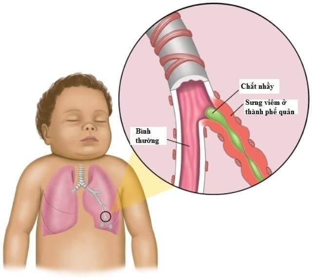 Hình ảnh đờm ở đường hô hấp của trẻ