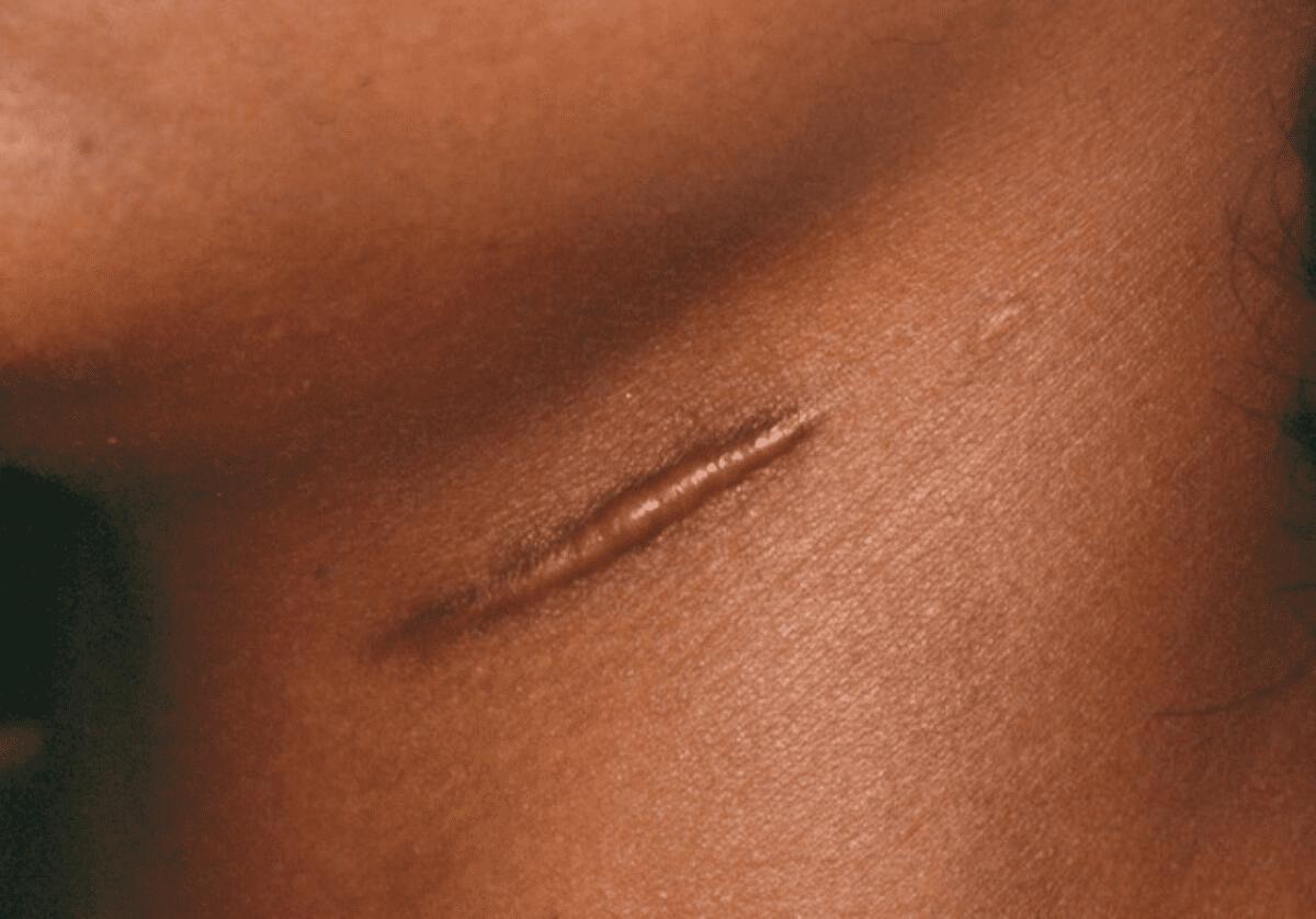 Scar Type 1