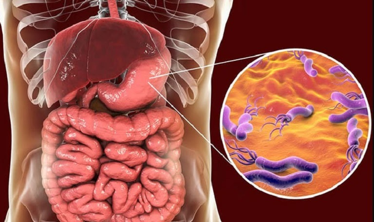 Nhóm thuốc có tác dụng tiêu diệt vi khuẩn HP được dùng phổ biến nhất với trường hợp bệnh nhân dương tính với loại vi khuẩn này