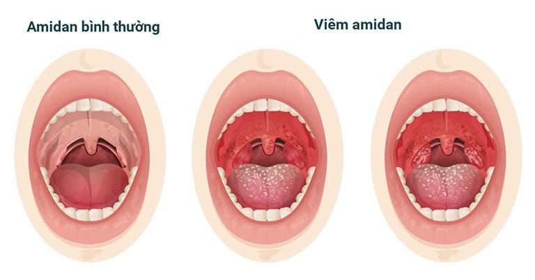 Amidan sưng to là triệu chứng điển hình của viêm amidan