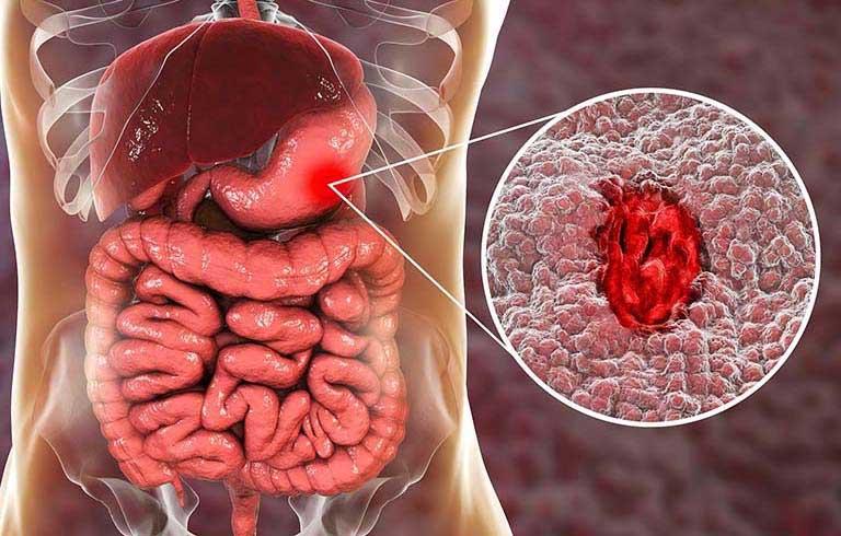 Xuất huyết dạ dày là gì? Dấu hiệu & Cách điều trị hiệu quả